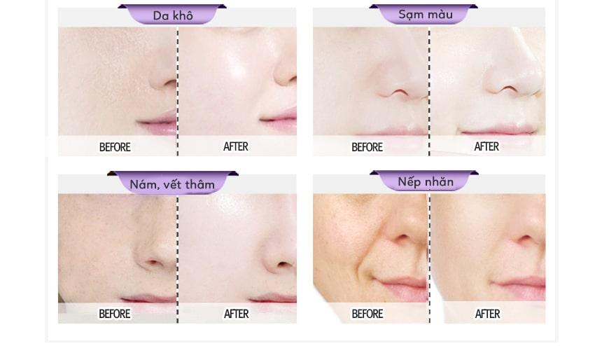 Tinh chất Collagen trắng da, nâng cơ, xóa nhăn Skin Pasión Retinol Serum 2