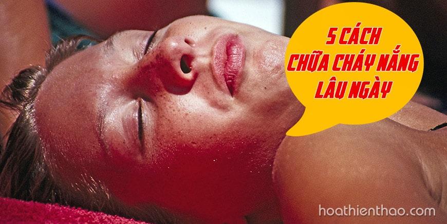 5 cách chữa da bị cháy nắng lâu ngày