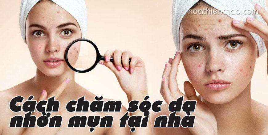 Cách chăm sóc da nhờn mụn tại nhà