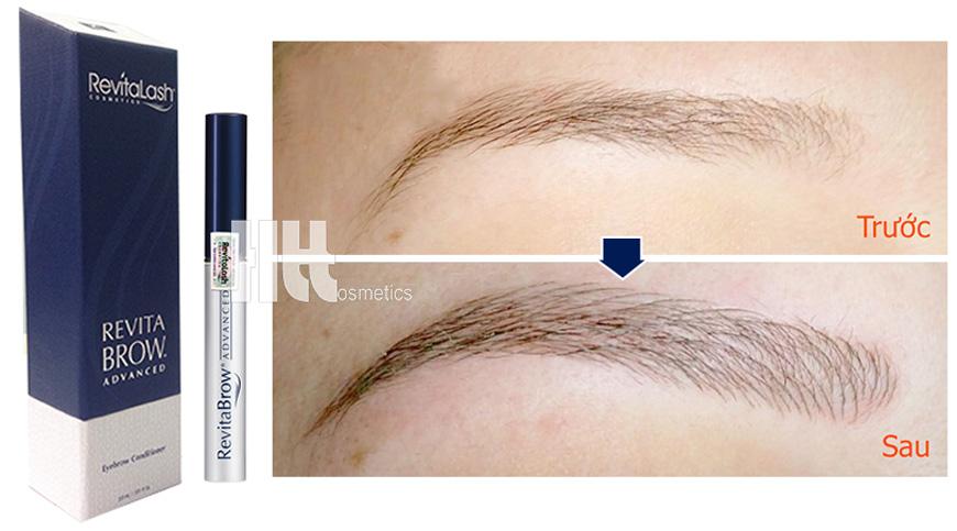 Hiệu quả trước và sau khi sử dụng thuốc mọc lông mày RevitaBrow
