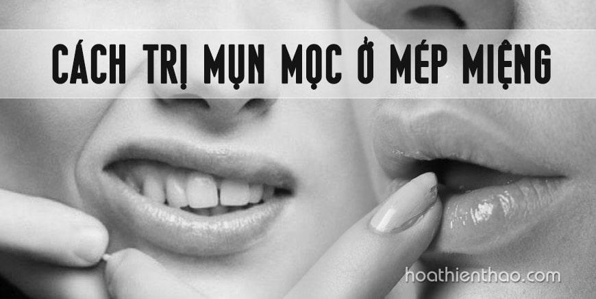 Cách trị mụn mọc ở mép miệng hiệu quả