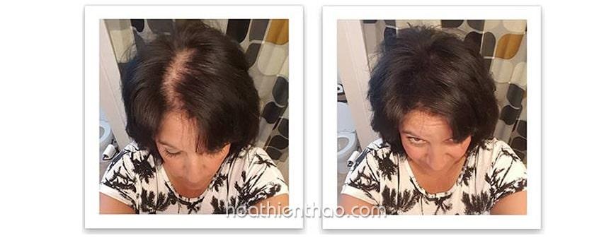 Cách trị rụng tóc tại nhà với viên uống có thật sự hiệu quả?