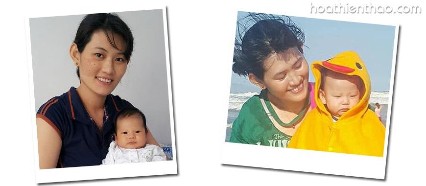 [Chia sẻ của khách hàng] Liệu trình trị nám thành công của bà mẹ 1 con 2