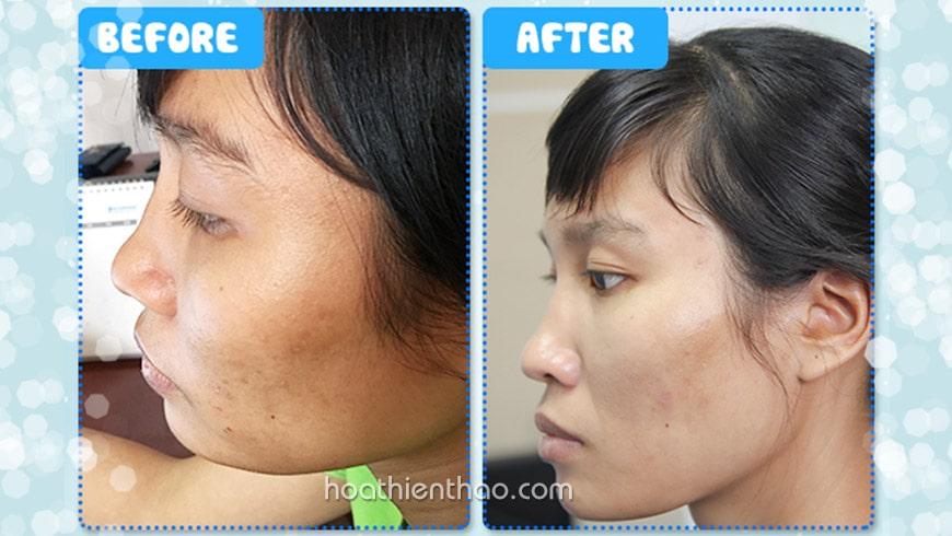 Hình ảnh trước & sau khi dùng kem dưỡng trắng da mặt Replay