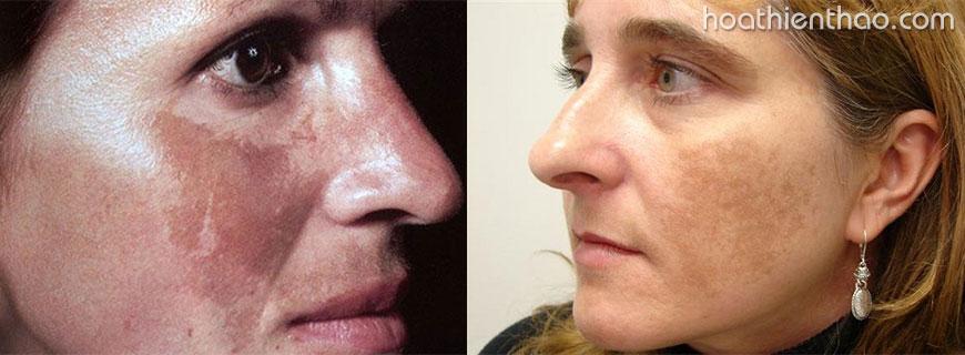 2. Tại sao trị nám da mặt nên theo phương pháp trong uống ngoài thoa?
