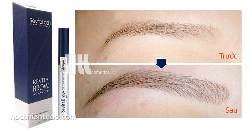 Trước và sau khi dùng Serum Revitabrow Advanced
