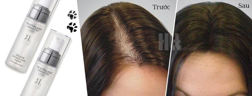 Hiệu quả mọc tóc vượt trội nhanh chóng