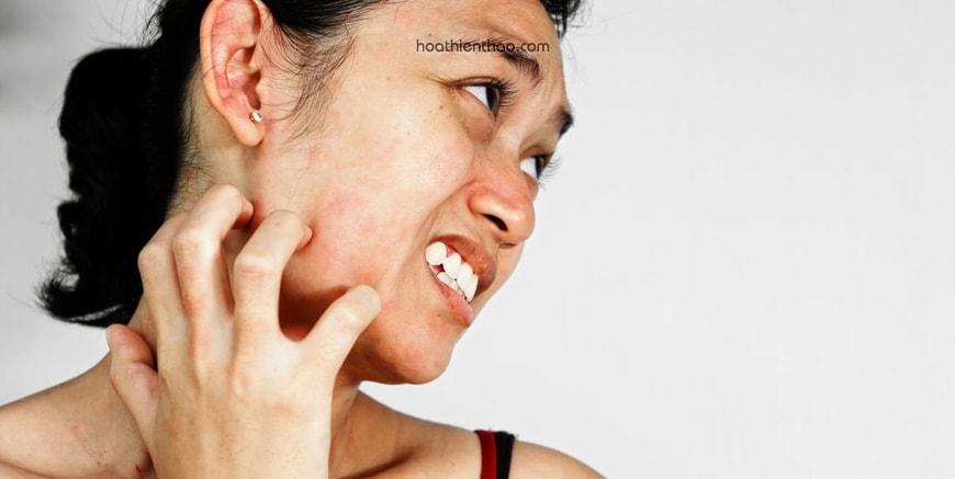 Làn da nhạy cảm, dễ tổn thương và thường sưng đỏ