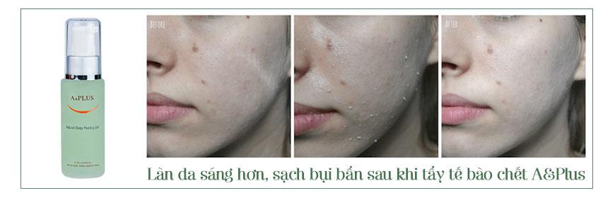 Hiệu quả gel A&Plus Deep Peeling A015