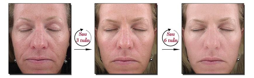 Hiệu quả kem chống lão hóa nâng cơ Jan Marini C-Esta Face