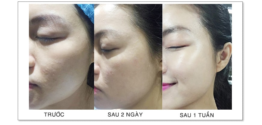 Hiệu quả Jan Marini Transformation Face