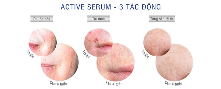Hiệu quả serum IS Clinical Active