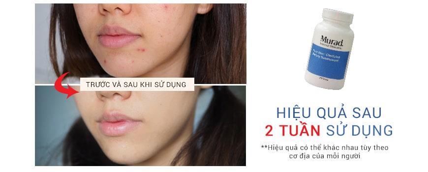 Hiệu quả viên uống trị mụn Murad Pure Skin Clarifying Dietary