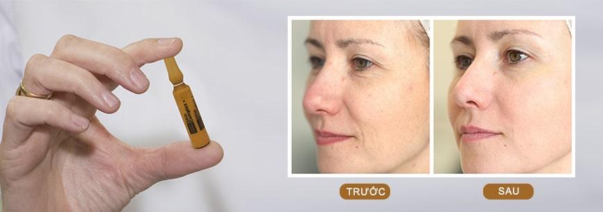 lợi ích của serum MartiDerm