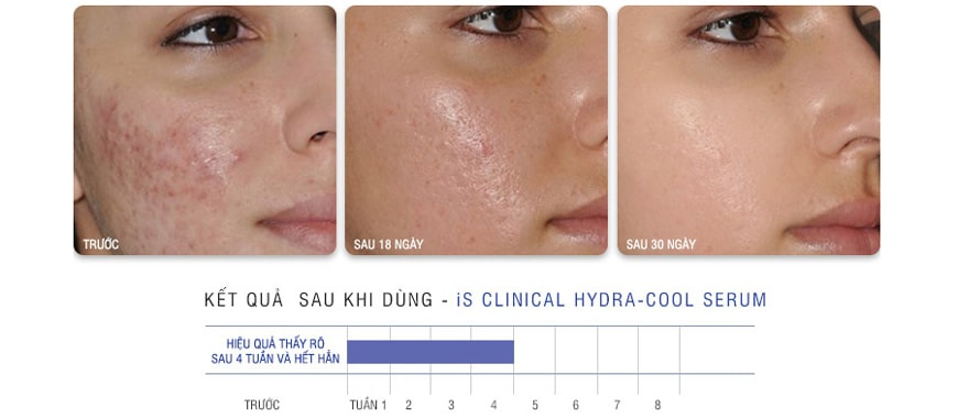 Lợi ích serum IS Clinical Pro-Heal Advanced
