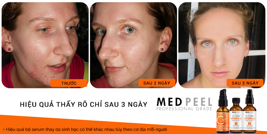 Hiệu quả Serum Medpeel Vitamin C 3-Day Facelift
