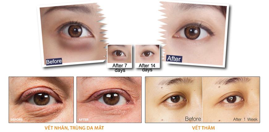 Bộ serum giảm quầng thâm, xóa nhăn da vùng mắt Medpeel Vitamin C 30x 2