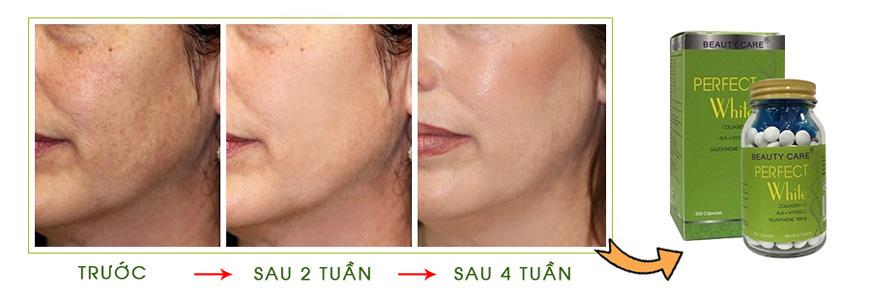 Hiệu quả kem trị nám tàn nhang, trắng da Beauty Care
