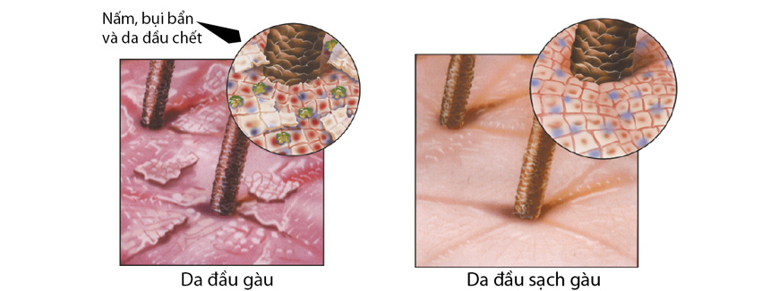 Công dụng dầu gội mọctóc Tricomin Conditioning Shampoo