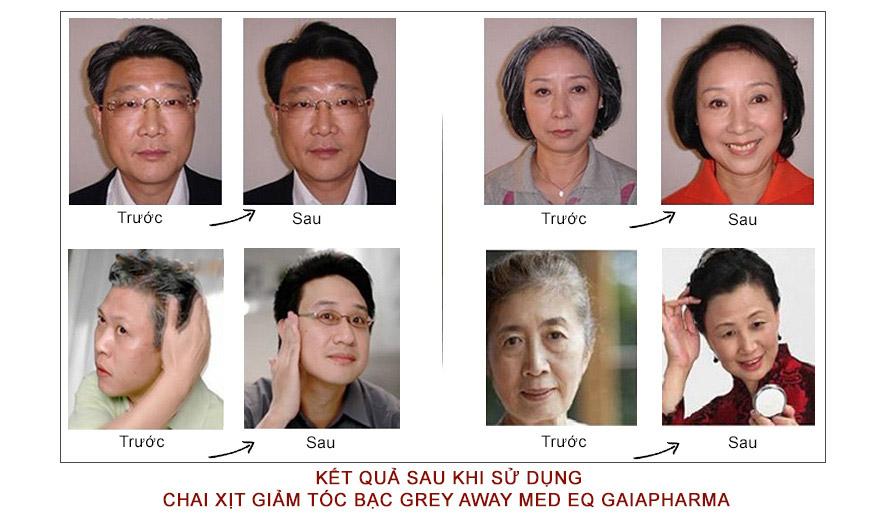 Chai xịt giảm tóc bạc Grey Away Med Eq Gaiapharma 3