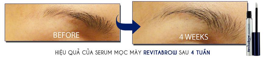 Hiệu quả sử dụng Serum Revitabrow Advanced Eyebrow Conditioner