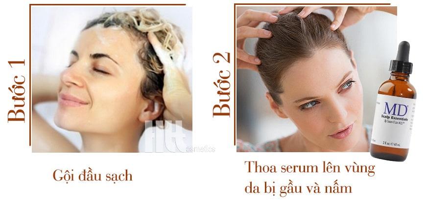 Công dụng Serum làm sạch gàu, nấm da đầu MD Scalp Essentials