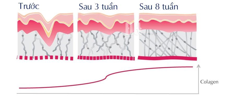 Hiệu quả sử dụng Serum iS Clinical Genexc