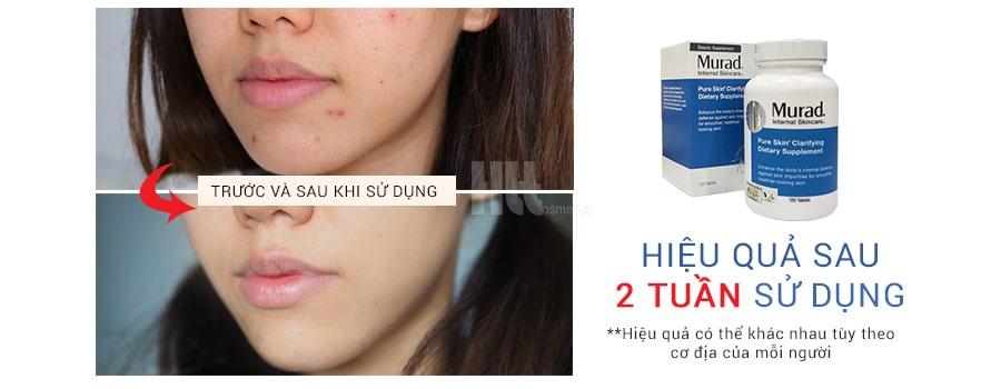 viên uống trị mụn murad pure skin clarifying dietary