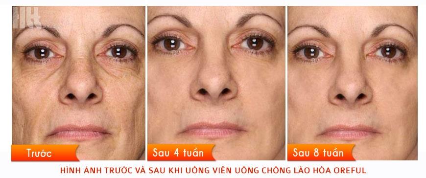 Hình ảnh trước và sau khi uống viên chống lão hóa Oreful