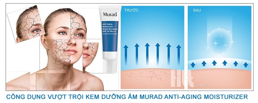 Kem dưỡng ẩm chống nắng cho da lão hóa Murad Moisturizer SPF30 PA+++