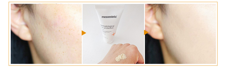 3. Kem chống nắng Mesoestetic Dermatological Sun Protection SPF50+