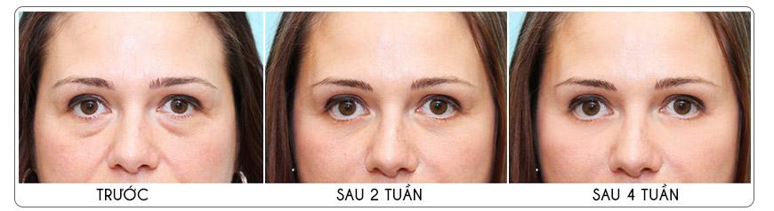 Công dụng kem dưỡng da chống nắng vùng mắt Murad