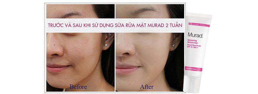 Công dụng Murad Balancing Moisturizer SPF 15 PA++