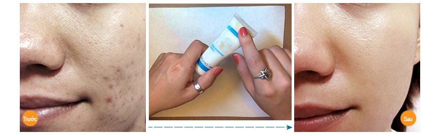 Kem dưỡng da giữ ẩm se khít lỗ chân lông Murad Skin Perfecting Lotion 3