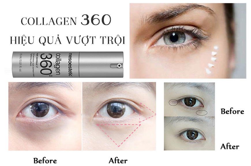 Hiệu quả Mesoestetic Collagen 360 Eye Contour