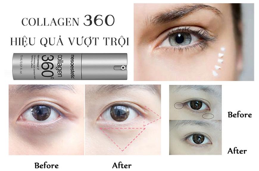 Kem collagen giảm rãnh nhăn, săn chắc da vùng mắt Mesoestetic Collagen 360 3