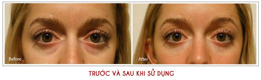 Kem dưỡng chống lão hóa da vùng mắt Dr. Brandt Do Not Age Triple Peptide 3