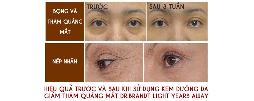Hiệu quả kem dưỡng da trị thâm quầng vùng mắt Dr. Brandt