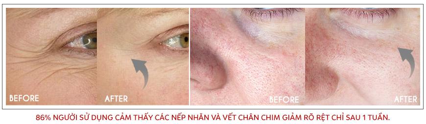 Công dụng Murad Eyelift Firming Treatment