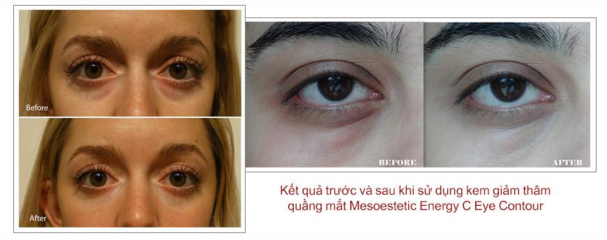 Hiệu quả Mesoestetic Energy C Eye Contour