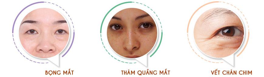 Kem giảm thâm, xóa nhăn vùng mắt cấp kỳ Murad Instant Radiance 1