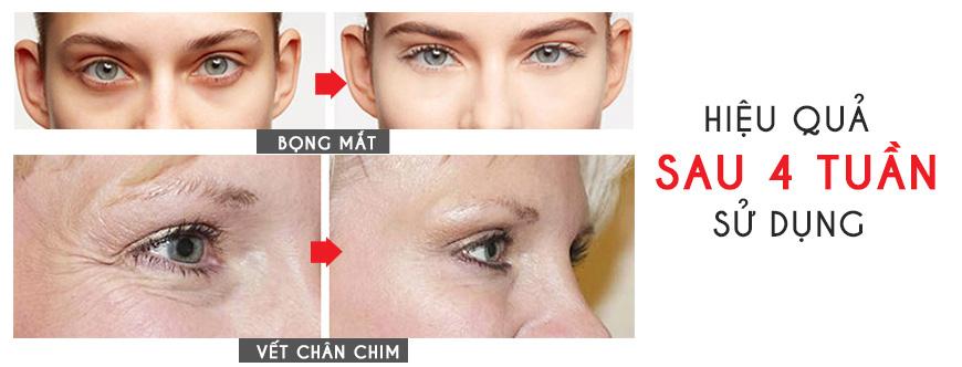 Công dụng Murad Hybrids Eye Lift Perfector
