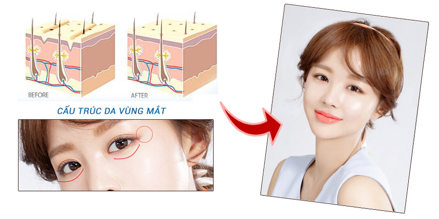 Hiệu quả iS Clinical Youth Eye Complex