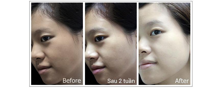 Kem dưỡng trắng da Dr. Brandt Light Years Away Whitening Cream 3