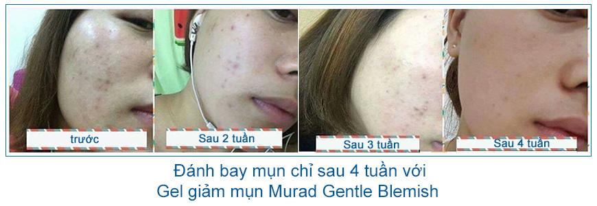 Gel giúp giảm mụn, giảm nhạy cảm da Murad Gentle Blemish 3