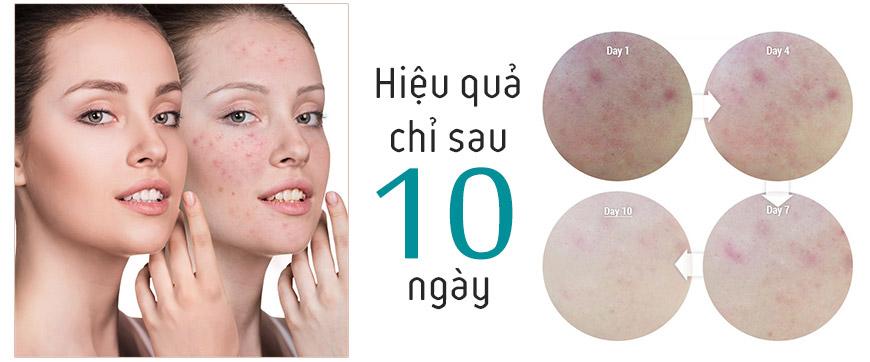 Hiệu quả kem trị mụn Giori Pharmacy Acne Cream