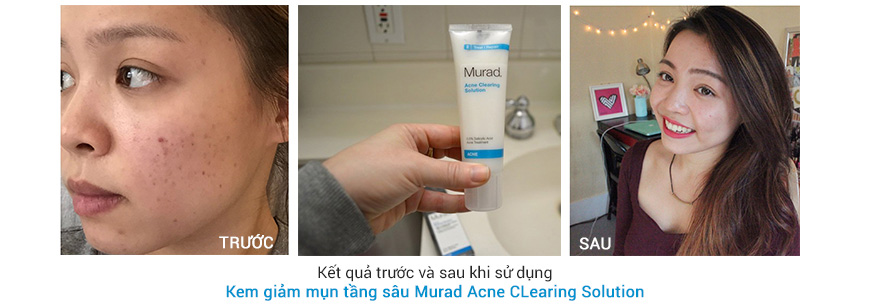 Công dụng Murad Acne CLearing Solution
