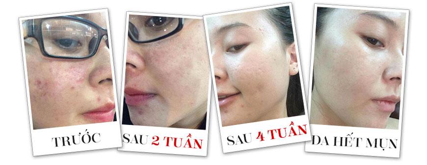 Kem trị mụn A&Plus Anti-Pimple Essence Cream A012 2