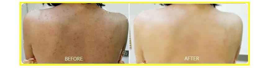Toner giúp giảm mụn dạng xịt Murad Clarifying Body Spray 3