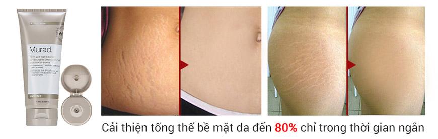 Serum làm săn chắc và trị rạn da Murad Cellulite Firm and Tone 2